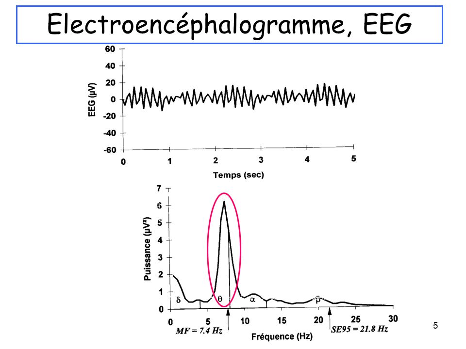 5 Electroencéphalogramme, EEG