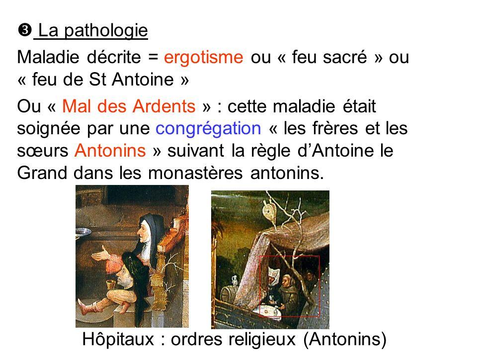 La pathologie Maladie décrite = ergotisme ou « feu sacré » ou « feu de St Antoine » Ou « Mal des Ardents » : cette maladie était soignée par une congr