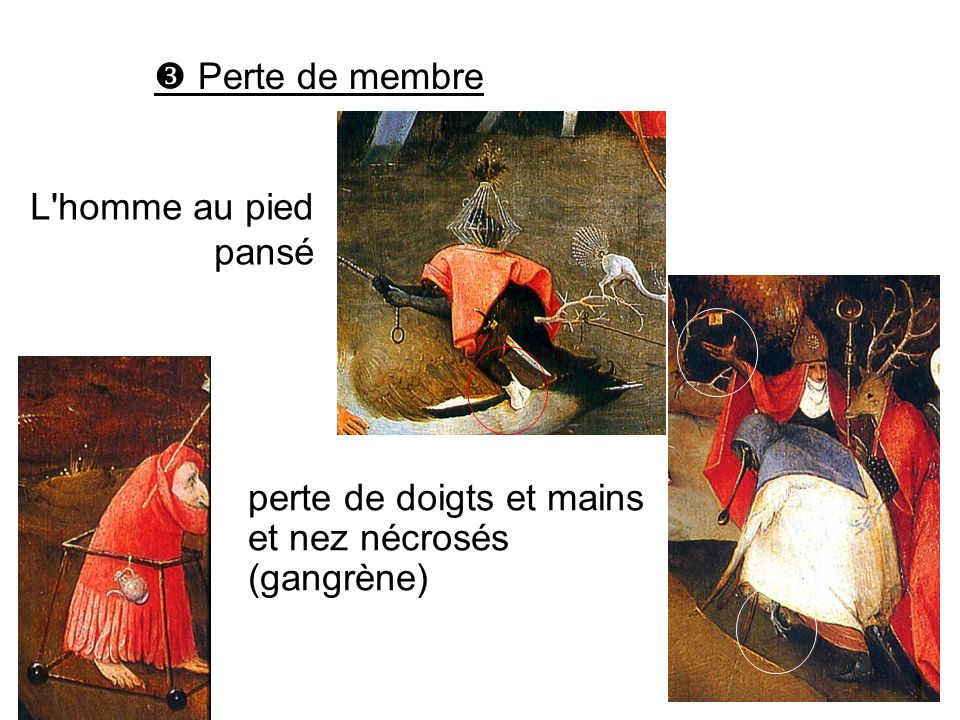 perte de doigts et mains et nez nécrosés (gangrène) Perte de membre L'homme au pied pansé