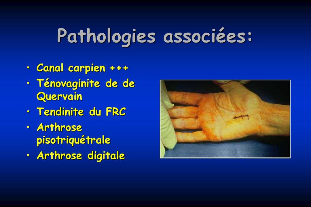 Pathologies associées: Canal carpien+++Canal carpien+++ Ténovaginite de de QuervainTénovaginite de de Quervain Tendinite du FRCTendinite du FRC Arthro