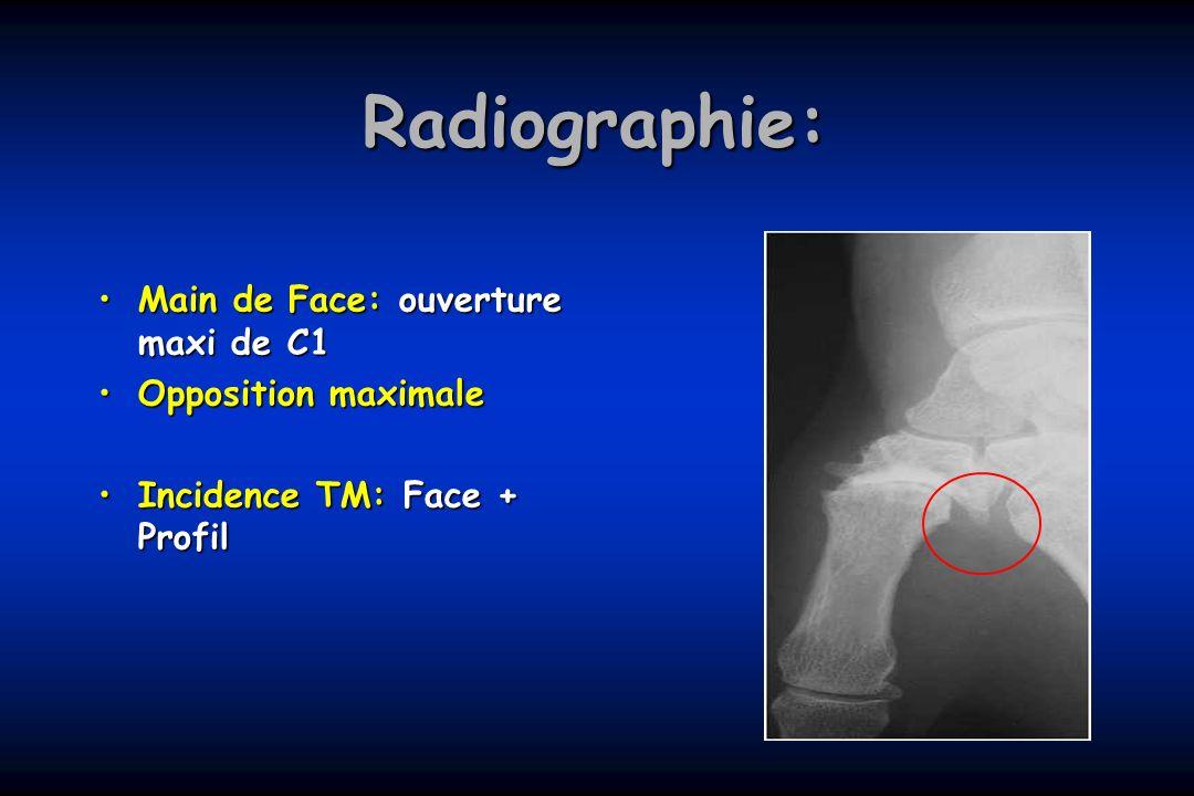 Radiographie: Main de Face: ouverture maxi de C1Main de Face: ouverture maxi de C1 Opposition maximaleOpposition maximale Incidence TM: Face + ProfilI
