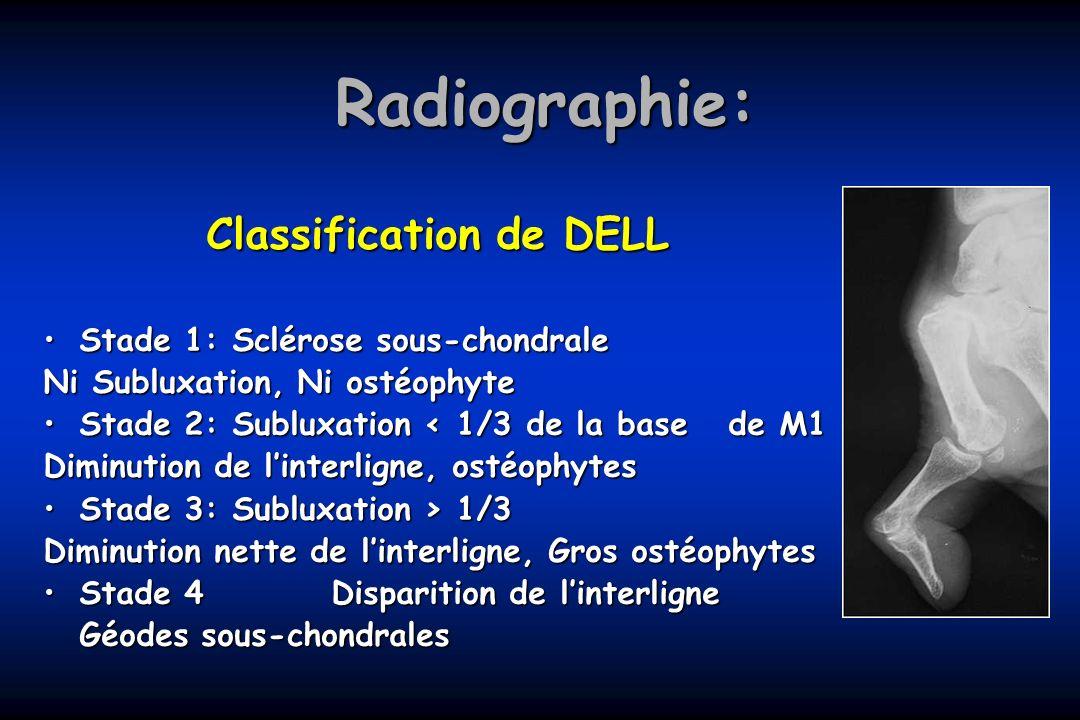 Radiographie: Classification de DELL Stade 1: Sclérose sous-chondraleStade 1: Sclérose sous-chondrale Ni Subluxation, Ni ostéophyte Stade 2: Subluxati