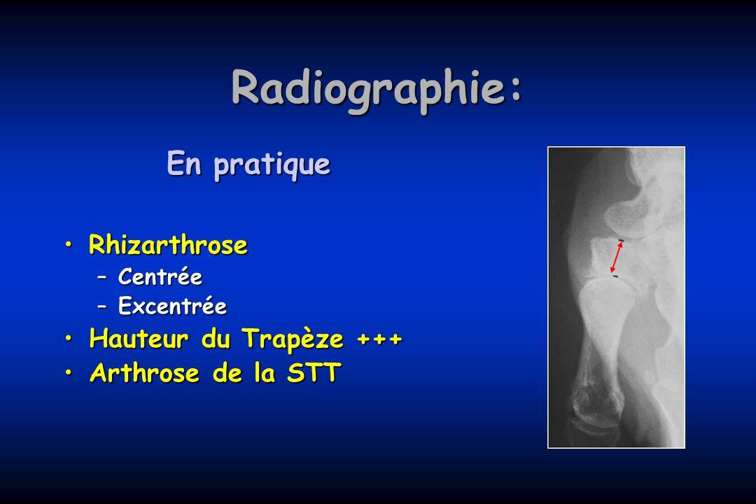 Radiographie: En pratique RhizarthroseRhizarthrose –Centrée –Excentrée Hauteur du Trapèze +++Hauteur du Trapèze +++ Arthrose de la STTArthrose de la S