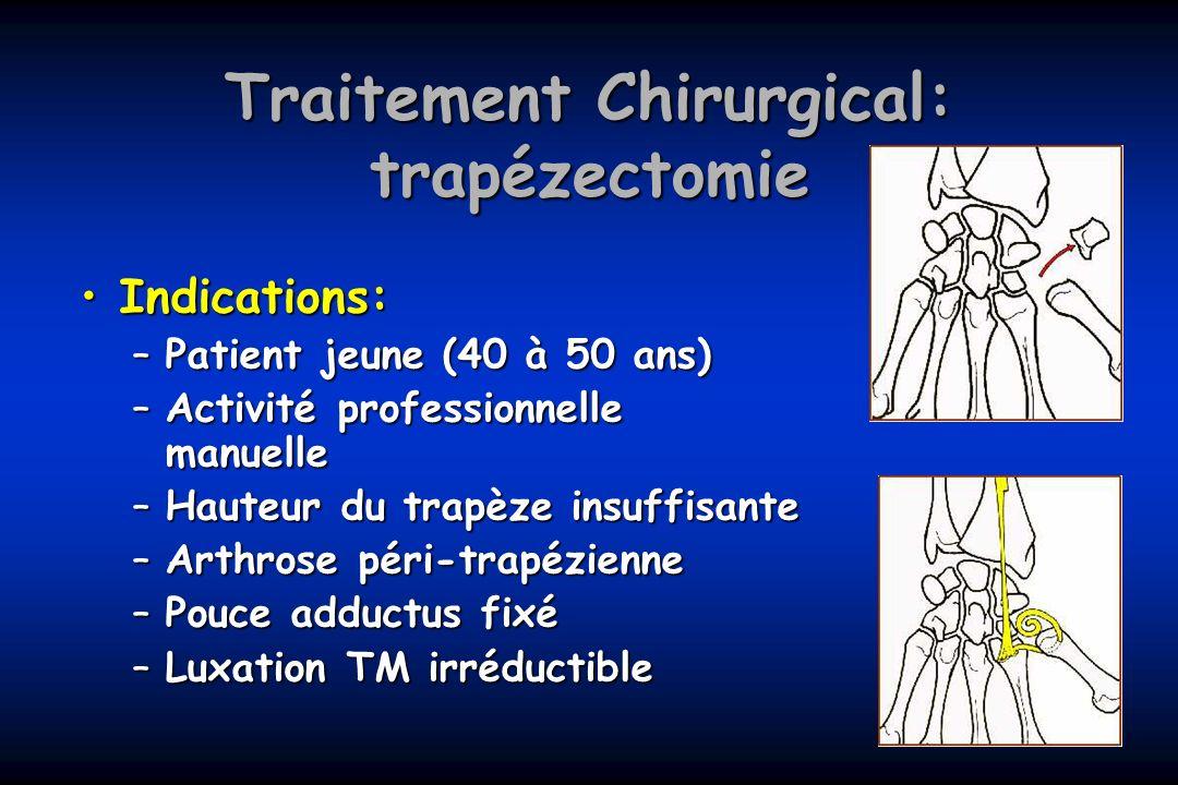 Traitement Chirurgical: trapézectomie Indications:Indications: –Patient jeune (40 à 50 ans) –Activité professionnelle manuelle –Hauteur du trapèze ins