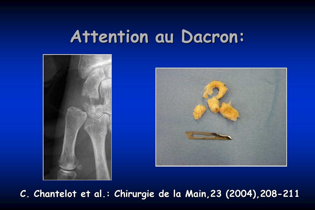 Attention au Dacron: C. Chantelot et al.: Chirurgie de la Main,23 (2004),208-211