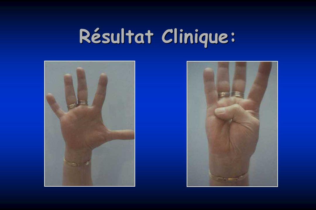 Résultat Clinique: