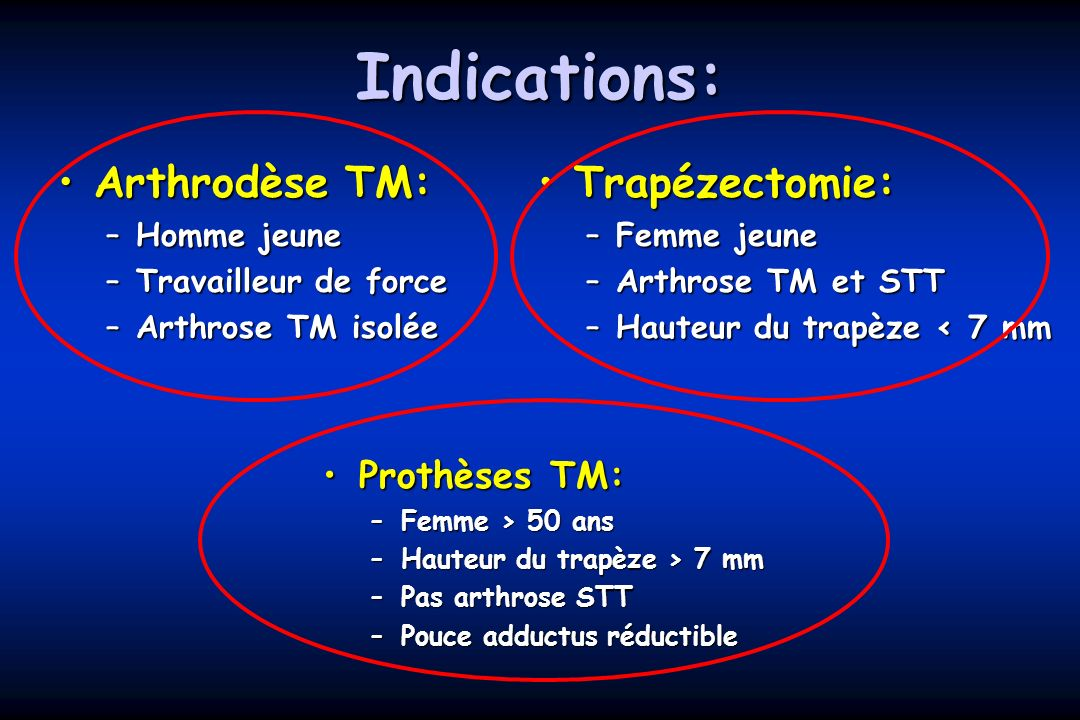 Indications: Arthrodèse TM:Arthrodèse TM: –Homme jeune –Travailleur de force –Arthrose TM isolée Trapézectomie:Trapézectomie: –Femme jeune –Arthrose T