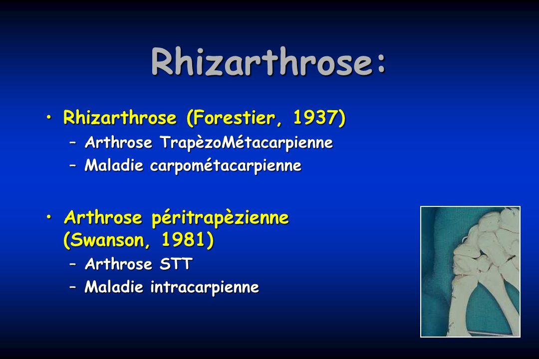 Rhizarthrose: Rhizarthrose (Forestier, 1937)Rhizarthrose (Forestier, 1937) –Arthrose TrapèzoMétacarpienne –Maladie carpométacarpienne Arthrose péritra