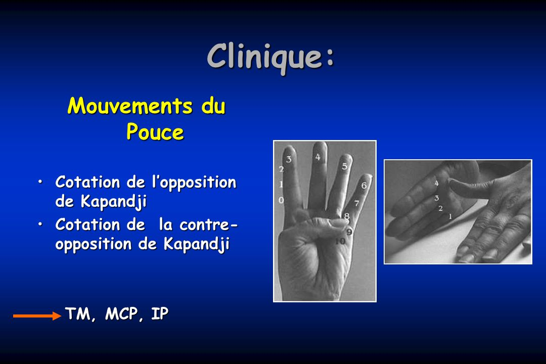 Clinique: Mouvements du Pouce Cotation de lopposition de KapandjiCotation de lopposition de Kapandji Cotation de la contre- opposition de KapandjiCota