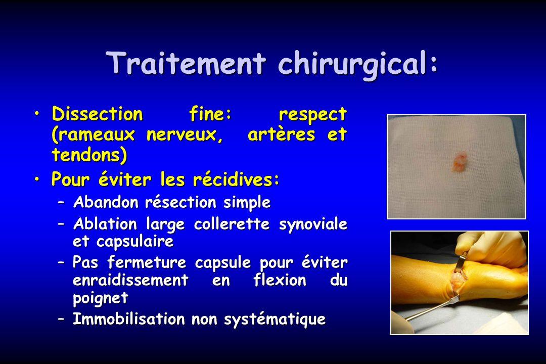 Traitement chirurgical: Dissection fine: respect (rameaux nerveux, artères et tendons)Dissection fine: respect (rameaux nerveux, artères et tendons) P