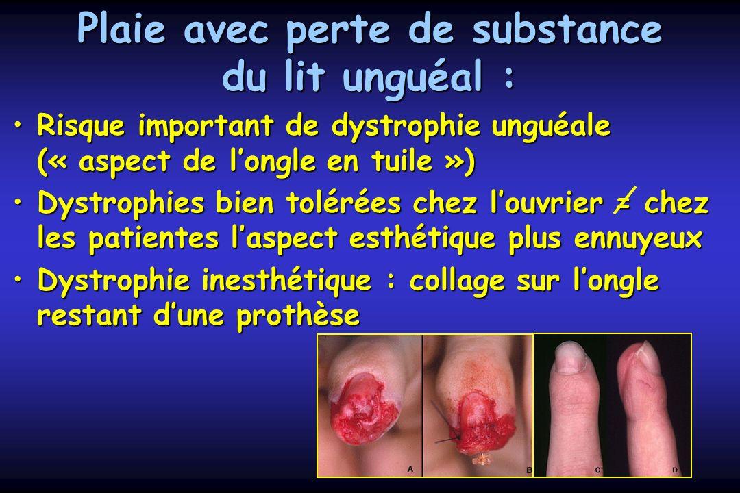De longle c. chantelot service de chirurgie de la main chru de lille