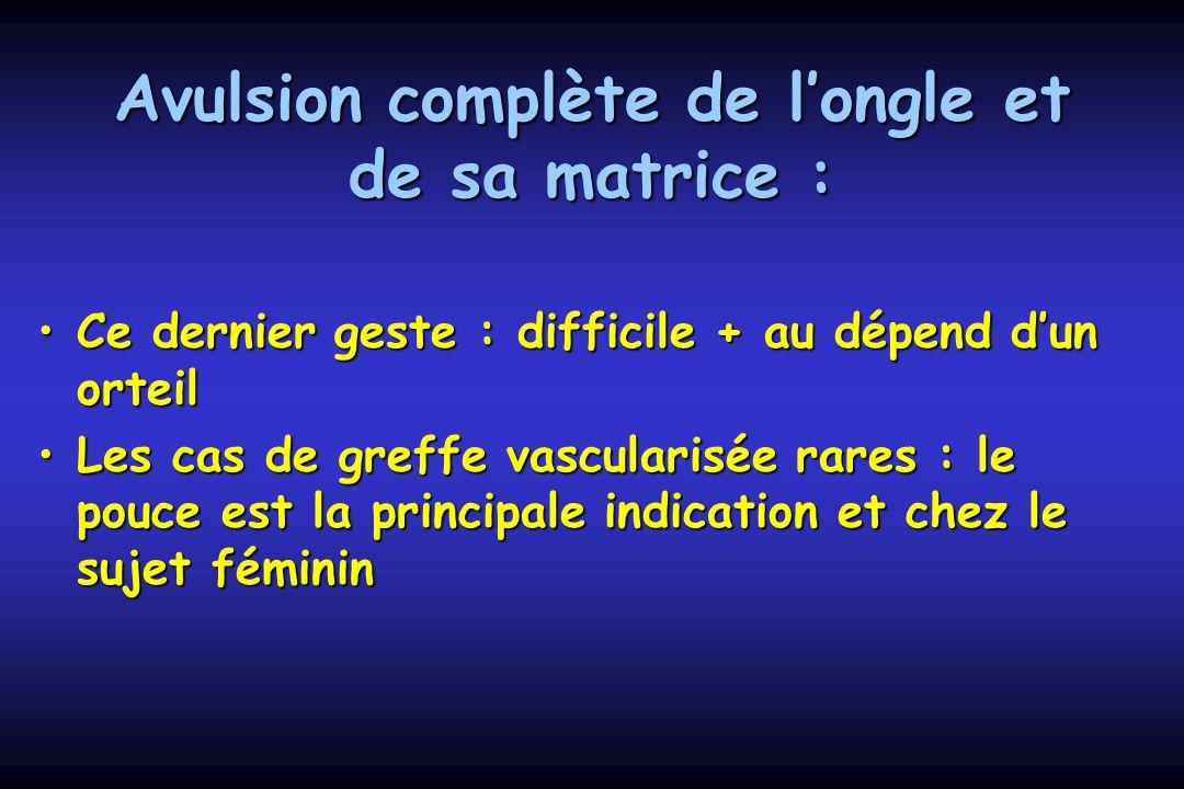 Avulsion complète de longle et de sa matrice : Ce dernier geste : difficile + au dépend dun orteilCe dernier geste : difficile + au dépend dun orteil