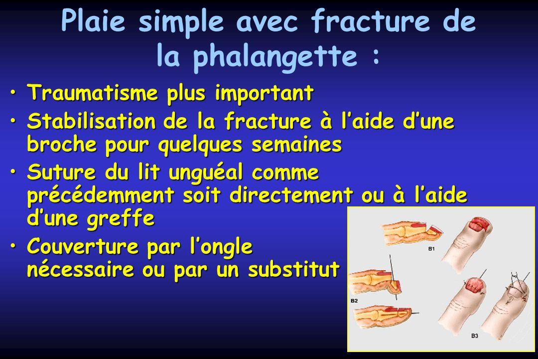 Plaie simple avec fracture de la phalangette : Traumatisme plus importantTraumatisme plus important Stabilisation de la fracture à laide dune broche p