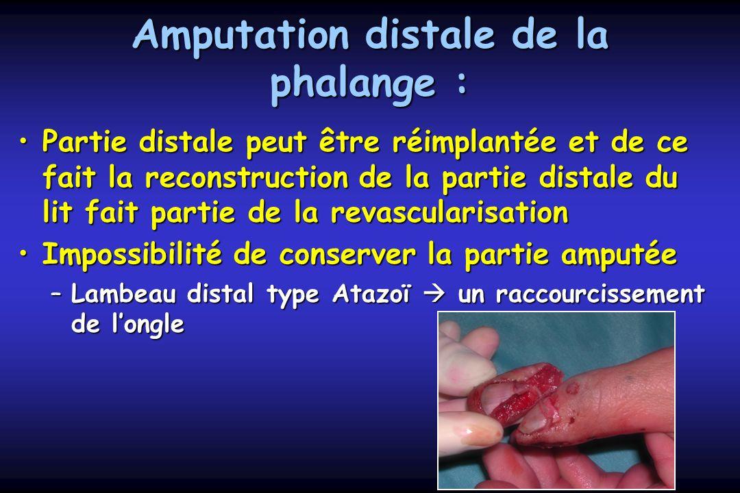 Amputation distale de la phalange : Partie distale peut être réimplantée et de ce fait la reconstruction de la partie distale du lit fait partie de la