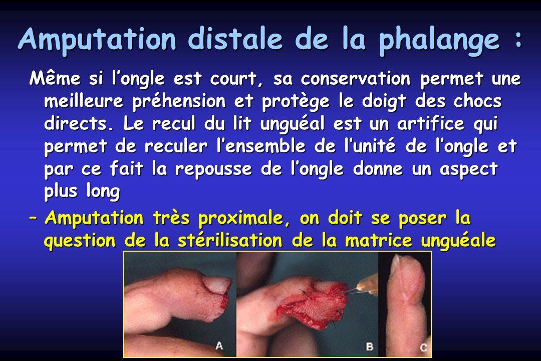 Amputation distale de la phalange : Même si longle est court, sa conservation permet une meilleure préhension et protège le doigt des chocs directs. L