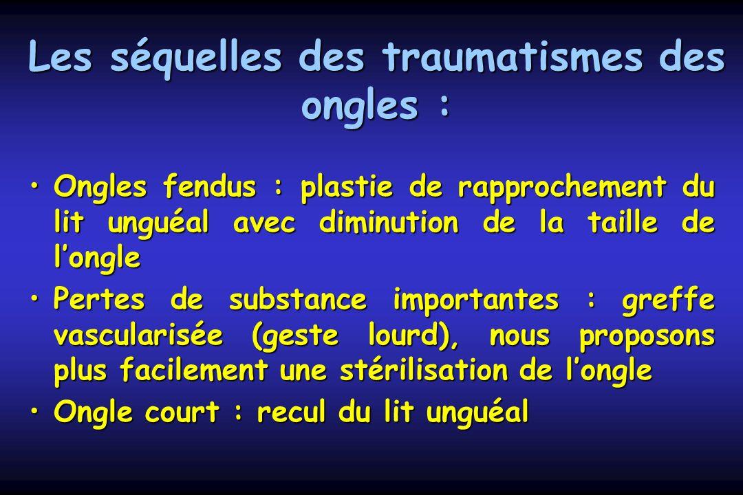 Les séquelles des traumatismes des ongles : Ongles fendus : plastie de rapprochement du lit unguéal avec diminution de la taille de longleOngles fendu