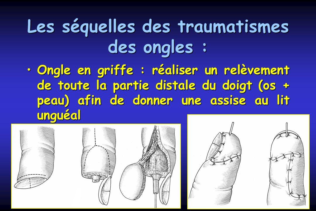 Les séquelles des traumatismes des ongles : Ongle en griffe : réaliser un relèvement de toute la partie distale du doigt (os + peau) afin de donner un