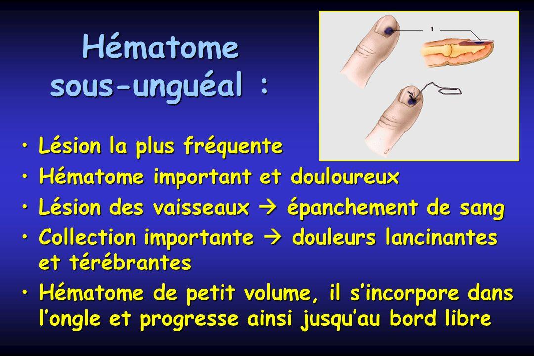 Hématome sous-unguéal : Lésion la plus fréquenteLésion la plus fréquente Hématome important et douloureuxHématome important et douloureux Lésion des v