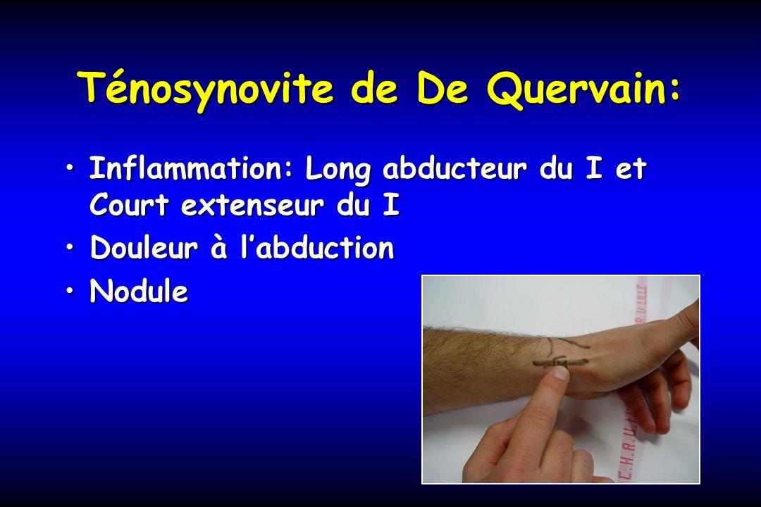 Ténosynovite de De Quervain: Inflammation: Long abducteur du I et Court extenseur du IInflammation: Long abducteur du I et Court extenseur du I Douleu