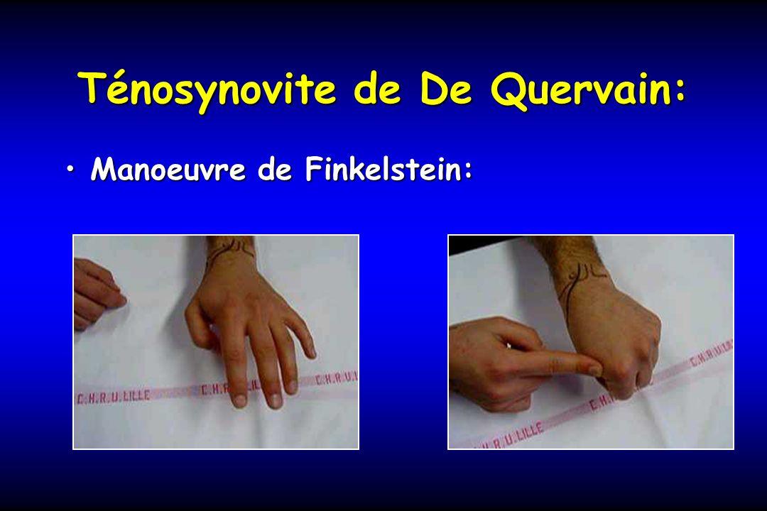 Ténosynovite de De Quervain: Manoeuvre de Finkelstein:Manoeuvre de Finkelstein: