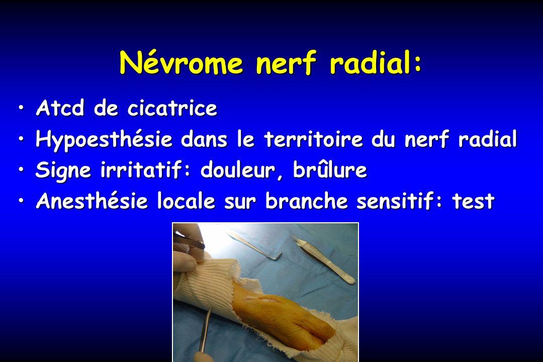 Névrome nerf radial: Atcd de cicatriceAtcd de cicatrice Hypoesthésie dans le territoire du nerf radialHypoesthésie dans le territoire du nerf radial S