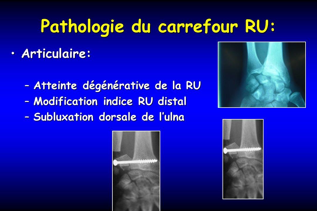 Pathologie du carrefour RU: Articulaire:Articulaire: –Atteinte dégénérative de la RU –Modification indice RU distal –Subluxation dorsale de lulna