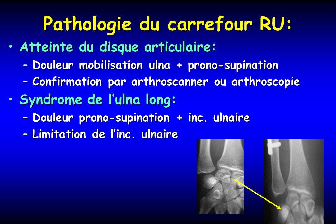 Pathologie du carrefour RU: Atteinte du disque articulaire:Atteinte du disque articulaire: –Douleur mobilisation ulna + prono-supination –Confirmation