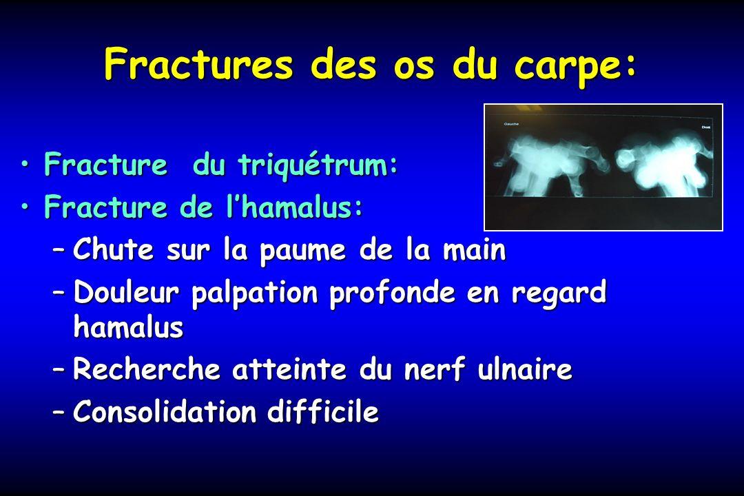 Fractures des os du carpe: Fracture du triquétrum:Fracture du triquétrum: Fracture de lhamalus:Fracture de lhamalus: –Chute sur la paume de la main –D