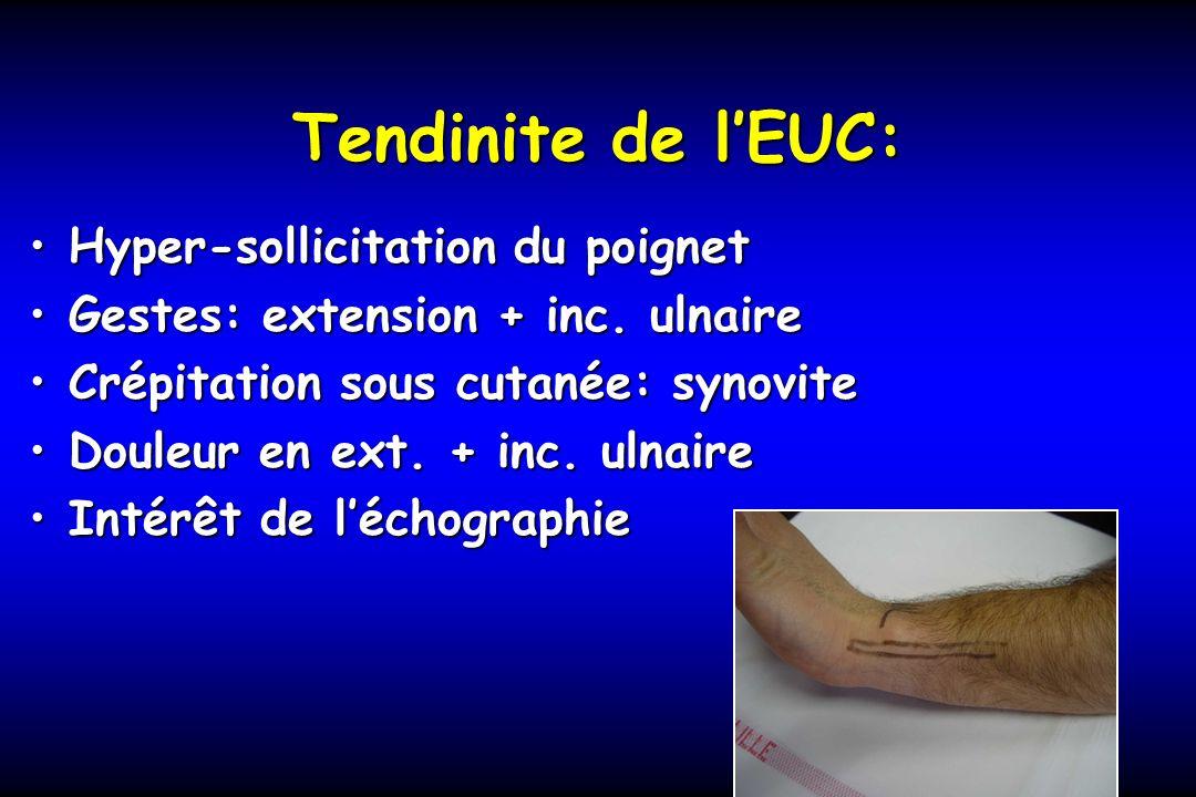 Tendinite de lEUC: Hyper-sollicitation du poignetHyper-sollicitation du poignet Gestes: extension + inc. ulnaireGestes: extension + inc. ulnaire Crépi
