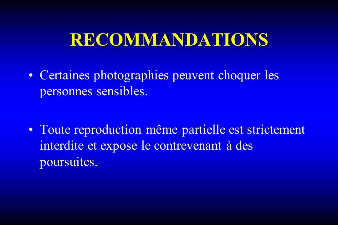 RECOMMANDATIONS Certaines photographies peuvent choquer les personnes sensibles. Toute reproduction même partielle est strictement interdite et expose