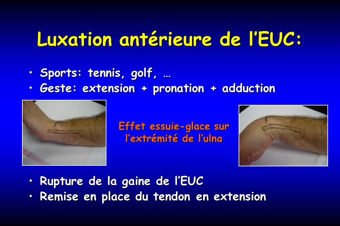 Luxation antérieure de lEUC: Sports: tennis, golf, …Sports: tennis, golf, … Geste: extension + pronation + adductionGeste: extension + pronation + add