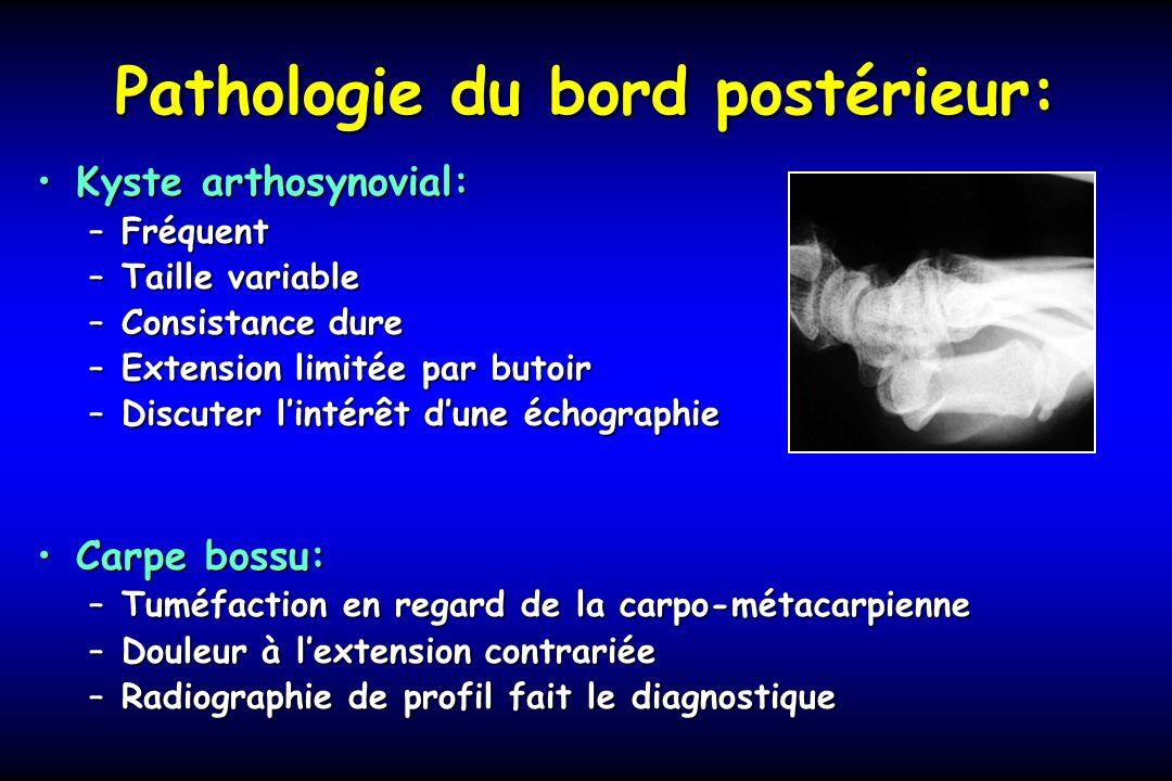 Pathologie du bord postérieur: Kyste arthosynovial:Kyste arthosynovial: –Fréquent –Taille variable –Consistance dure –Extension limitée par butoir –Di