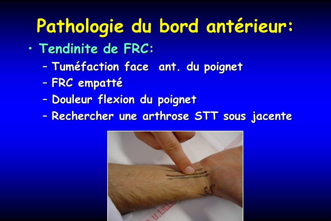 Pathologie du bord antérieur: Tendinite de FRC:Tendinite de FRC: –Tuméfaction face ant. du poignet –FRC empatté –Douleur flexion du poignet –Recherche