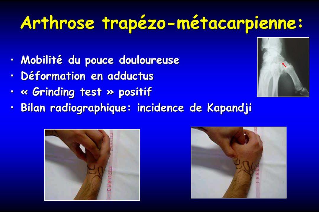 Arthrose trapézo-métacarpienne: Mobilité du pouce douloureuseMobilité du pouce douloureuse Déformation en adductusDéformation en adductus « Grinding t