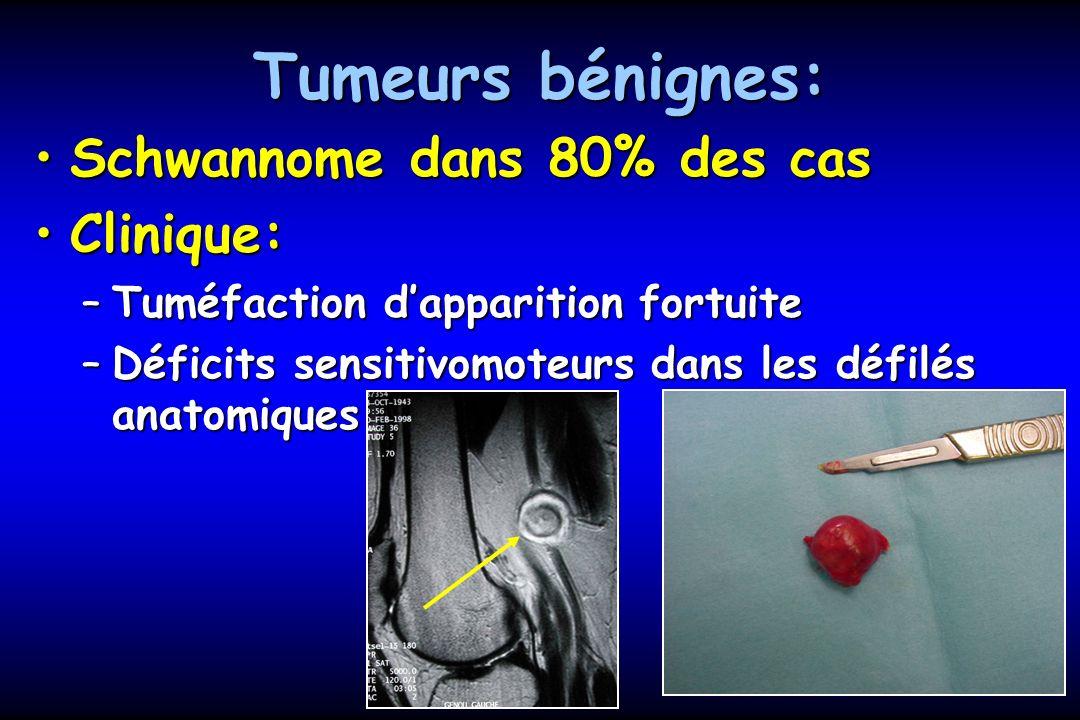 Tumeurs bénignes: Clinique:Clinique: –Tumeur dure, superficielle, sensible –Douleur à la palpation –Recherche dautres tumeurs –Atcd: Recklinghausen