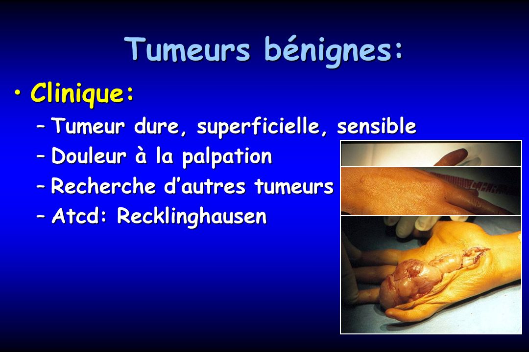 Tumeurs bénignes: Diagnostic dune neurofibromatose:Diagnostic dune neurofibromatose: –Interrogatoire: Atcd familiaux –Examen de lœil à la lampe à fente: corps de Lisch (hamartome mélanocytaire au niveau de liris) –IRMN cérébrale: schwannome vestibulaire