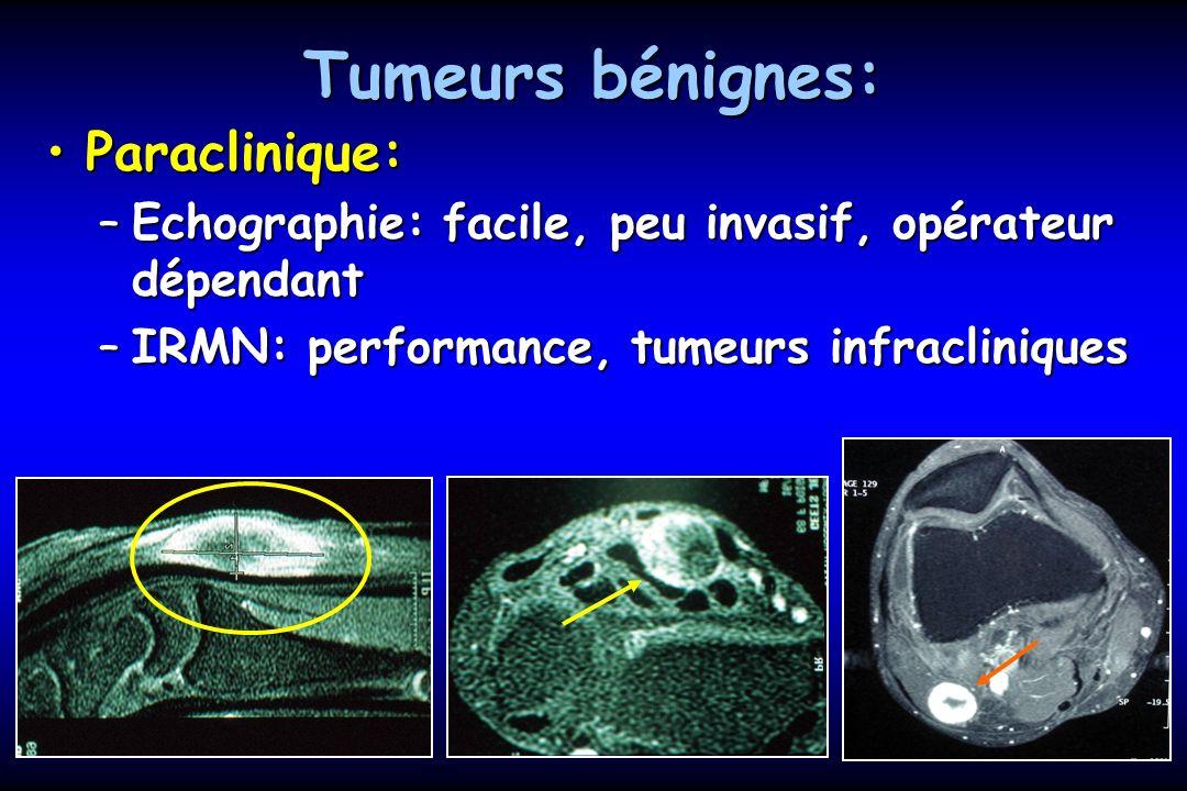 Tumeurs bénignes: extirpables Schwannome: 80% des casSchwannome: 80% des cas –Encapsulé –Clivable –Fascicules respectés –2 types histologiques Lipome intra-nerveux:Lipome intra-nerveux: –Encapsulé –Peu de signe clinique