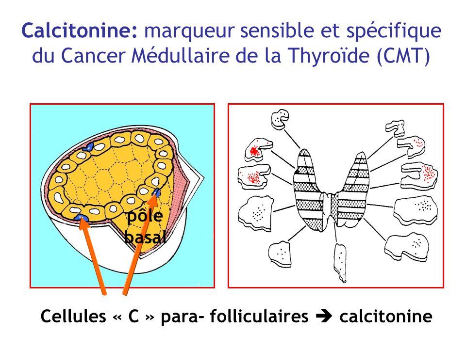 Calcitonine: marqueur sensible et spécifique du Cancer Médullaire de la Thyroïde (CMT) Cellules « C » para- folliculaires calcitonine pôle basal