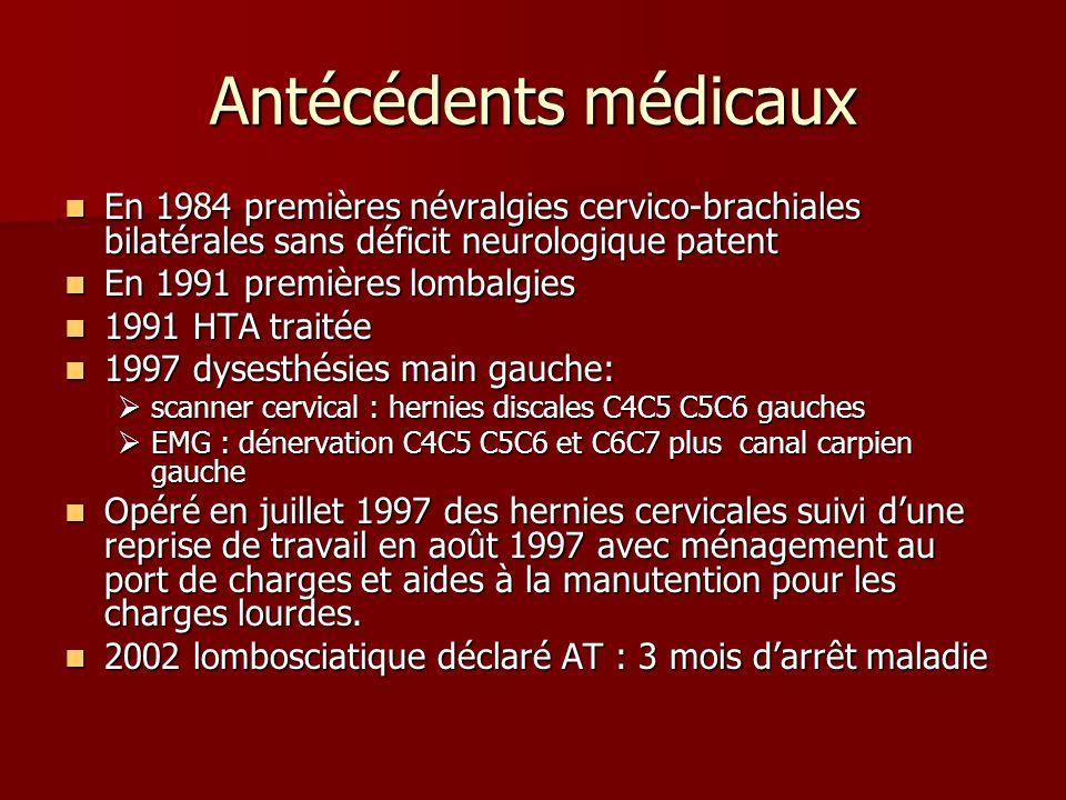 Antécédents médicaux En 1984 premières névralgies cervico-brachiales bilatérales sans déficit neurologique patent En 1984 premières névralgies cervico