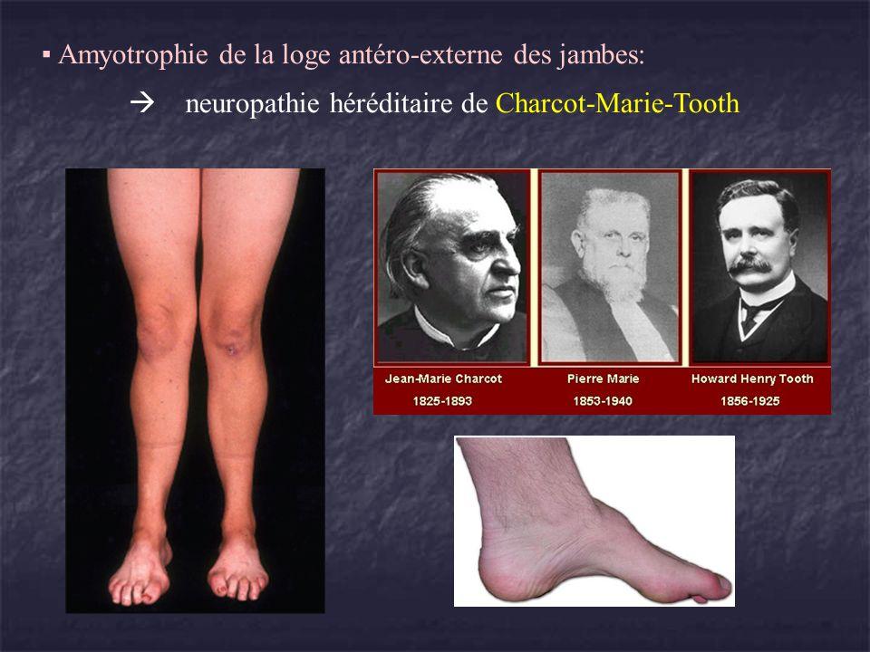 Amyotrophie de la loge antéro-externe des jambes: neuropathie héréditaire de Charcot-Marie-Tooth