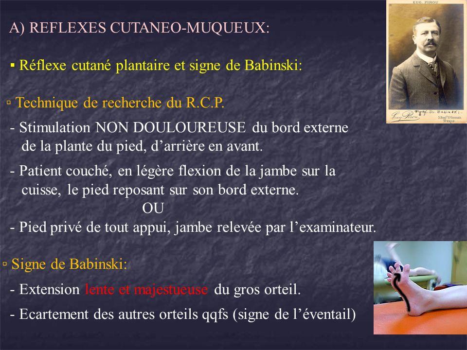 A) REFLEXES CUTANEO-MUQUEUX: Réflexe cutané plantaire et signe de Babinski: Technique de recherche du R.C.P. - Stimulation NON DOULOUREUSE du bord ext