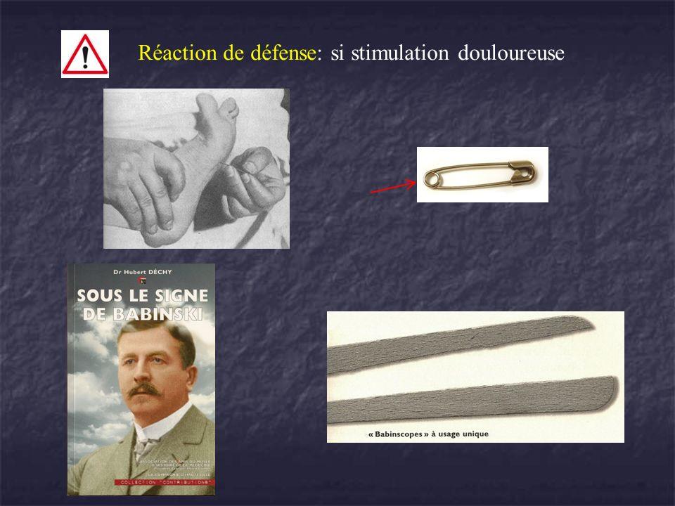 Réaction de défense: si stimulation douloureuse