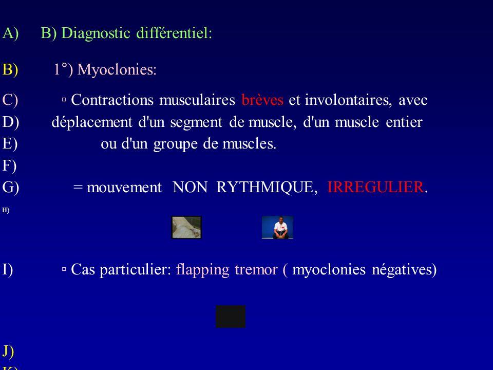 A)B) Diagnostic différentiel: B) 1°) Myoclonies: C) Contractions musculaires brèves et involontaires, avec D)déplacement d'un segment de muscle, d'un