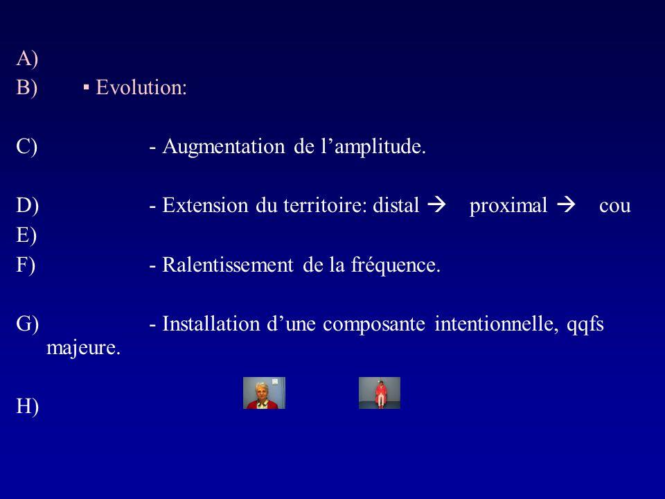A) B) Evolution: C)- Augmentation de lamplitude. D)- Extension du territoire: distal proximal cou E) F)- Ralentissement de la fréquence. G)- Installat