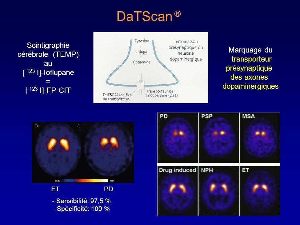 ETPD Scintigraphie cérébrale (TEMP) au [ 123 I]-Ioflupane = [ 123 I]-FP-CIT DaTScan ® Marquage du transporteur présynaptique des axones dopaminergique