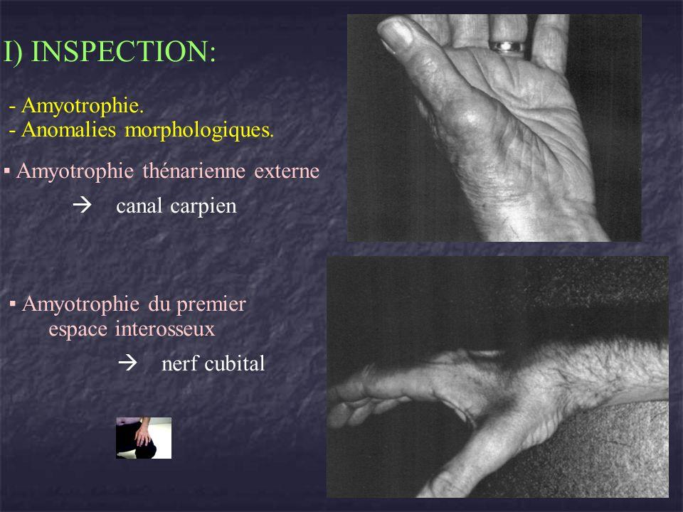 I) INSPECTION: - Amyotrophie. - Anomalies morphologiques. Amyotrophie thénarienne externe canal carpien Amyotrophie du premier espace interosseux nerf