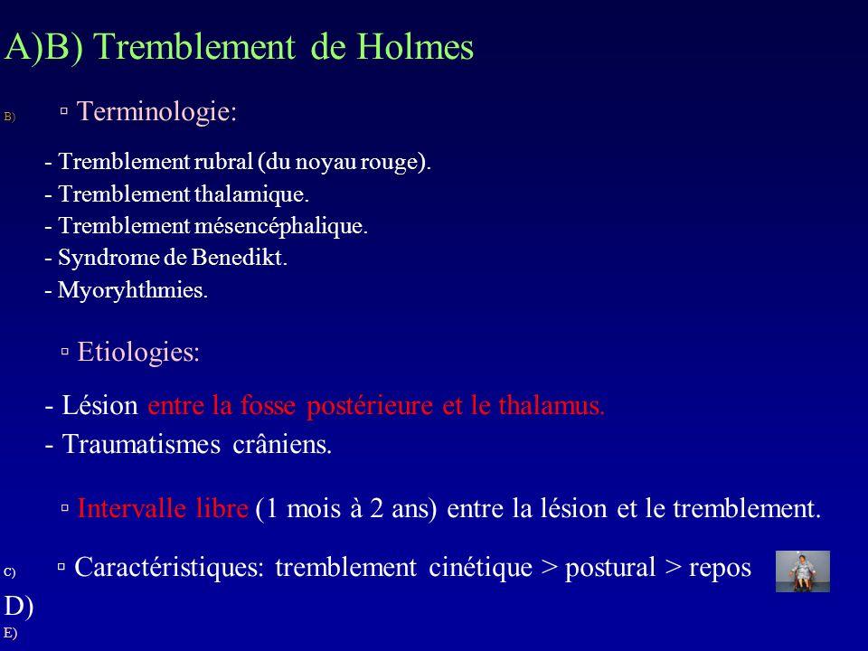 A)B) Tremblement de Holmes B) Terminologie: - Tremblement rubral (du noyau rouge). - Tremblement thalamique. - Tremblement mésencéphalique. - Syndrome