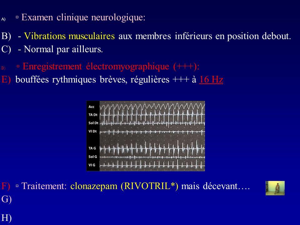A) Examen clinique neurologique: B) - Vibrations musculaires aux membres inférieurs en position debout. C) - Normal par ailleurs. D) Enregistrement él