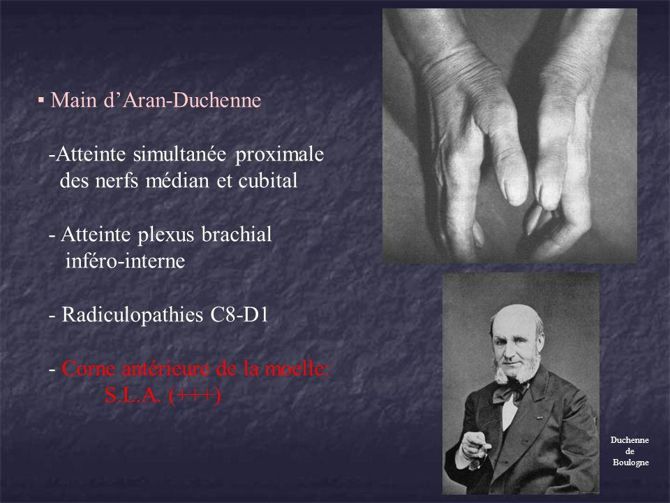 Amyotrophie de la fosse sous-épineuse Syndrome du nerf sus-scapulaire Deux formes: - Au niveau de léchancrure coracoïdienne: atteinte sus-épineux et sous-épineux - Au niveau du défilé spino-glénoïdien (rare): atteinte sous-épineux Clinique: - Douleur profonde postérieure de lépaule.