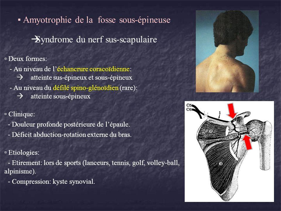 Amyotrophie de la fosse sous-épineuse Syndrome du nerf sus-scapulaire Deux formes: - Au niveau de léchancrure coracoïdienne: atteinte sus-épineux et s